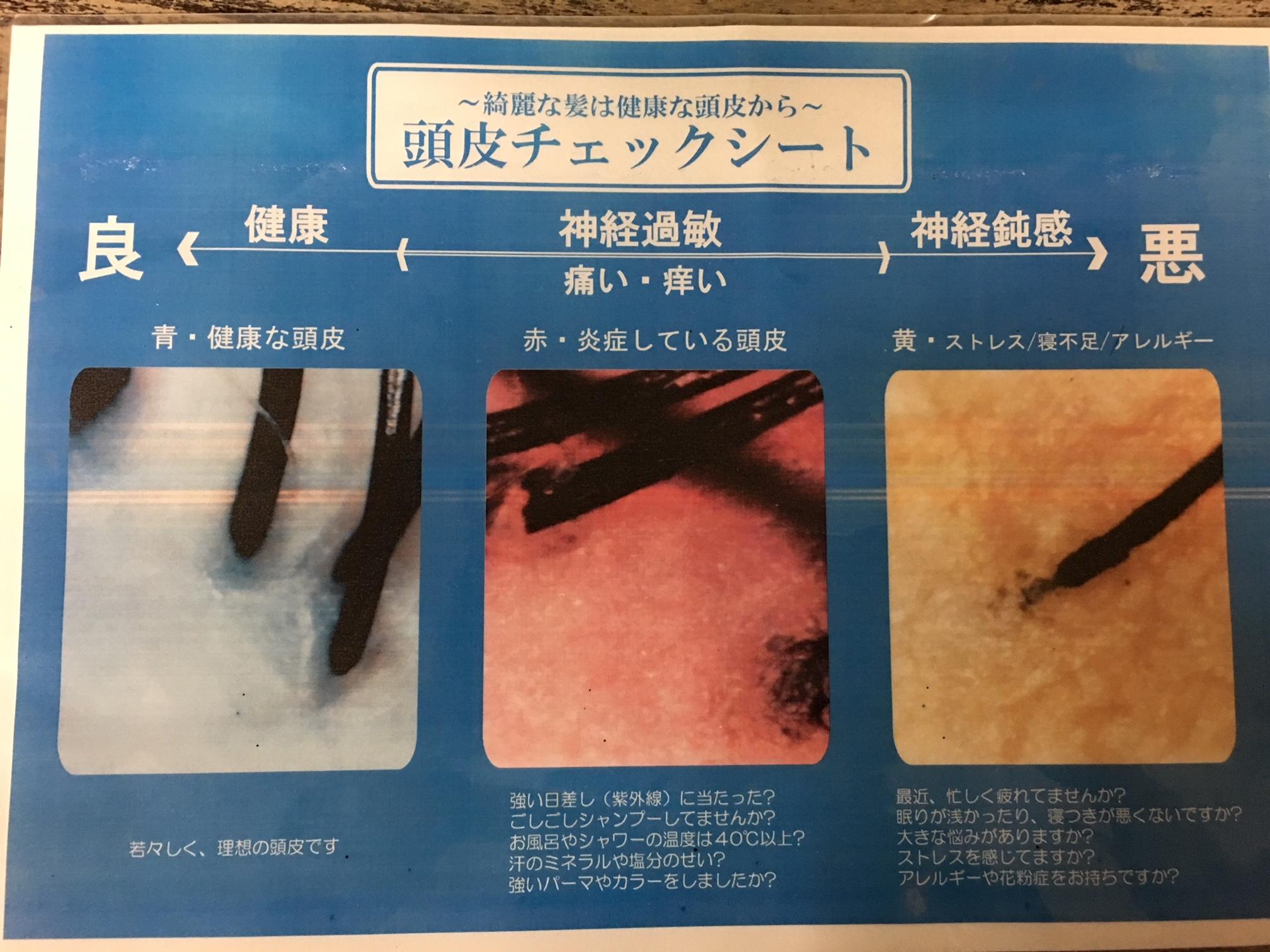頭皮診断 頭皮チェックシート カウンセリング http://www.ankh-jp.com