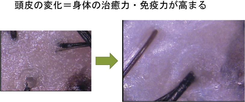 頭皮と体調 http://www.ankh-jp.com