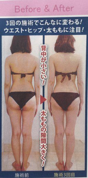 週1回×3回 ハイパーナイフ http://www.ankh-jp.com/beauty-esthetic-menu/hyperknife/
