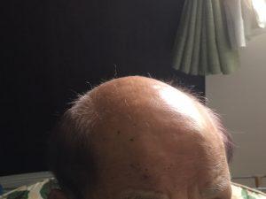 97歳 頭皮洗浄 発毛 http://www.ankh-jp.com