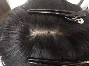 頭皮と身体の研究 https://www.ankh-jp.com/ankh-menu-blog/23scalp-cleaning/5664/