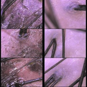 Scalp cleansing: before and after     http://www.ankh-jp.com